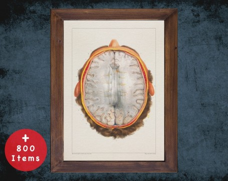 Anatomy art, BRAIN HORIZONTAL CUT, medical student gift, neuroscience and Neurosurgery, doctor office decor