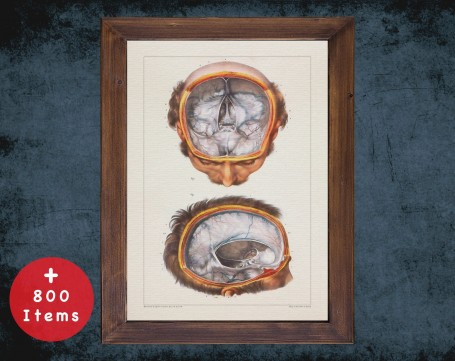 Anatomy art, HEAD BRAIN MENINGES, medical student gift, neuroscience and Neurosurgery, doctor office decor