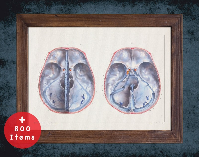 Anatomy art, DURA MATER BRAIN, medical student gift, neuroscience and Neurosurgery, doctor office decor