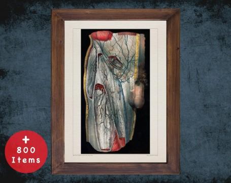 Anatomy art, PELVIS HIP VEIN, medical student gift, Vessel blood and Vascular surgery, doctor office decor