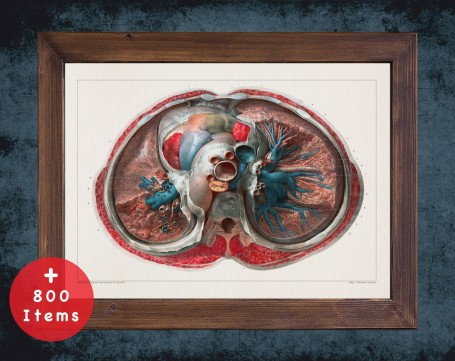 Anatomy art, LUNG TOP ARTERY, medical student gift, Pulmonologists and Pulmonology, doctor office decor
