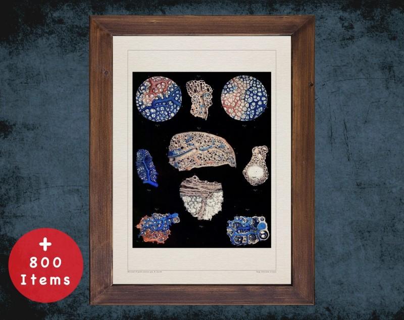 Anatomy art, LUNG PULMONARY ALVEOLUS, medical student gift, Pulmonologists and Pulmonology, doctor office decor